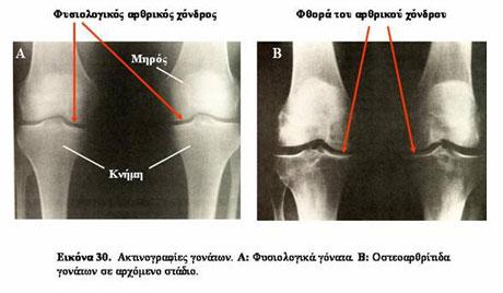 Οστεοαρθρίτιδα και θεραπευτική αντιμετώπιση